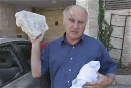 Meir Indor, with a rock thrown at him
