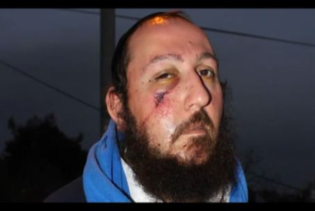 Jew Attacked by Arab Mob
