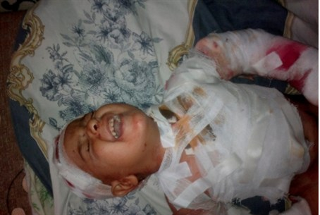 Child wounded by Syrian shelling.