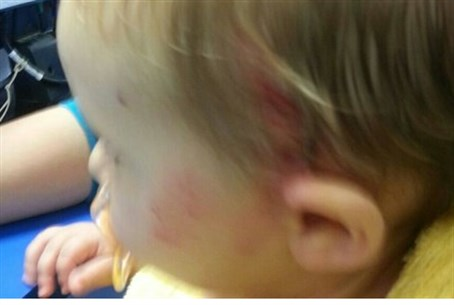The baby who was attacked