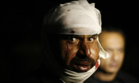 Injured Pakistani man