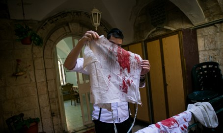 Bloody tallit worn by stab victim