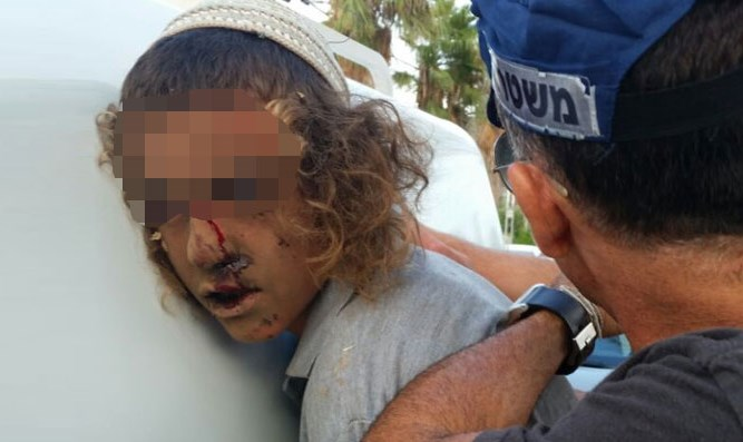 Teen wounded during arrest in Nahliel