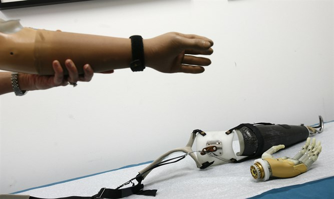 Bionic arm / prosthetic