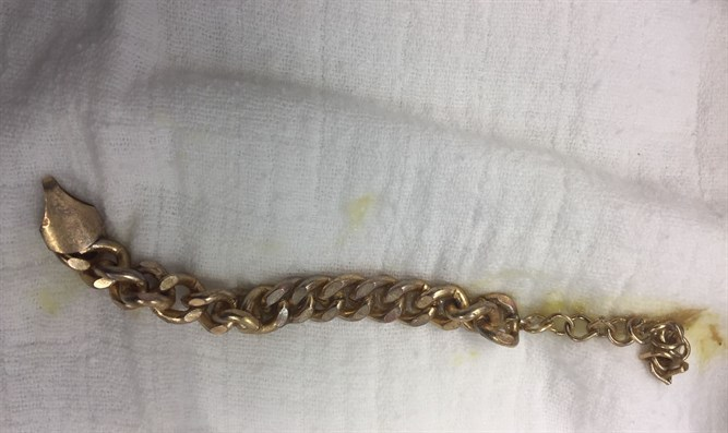 The chain pulled from the boy's stomach