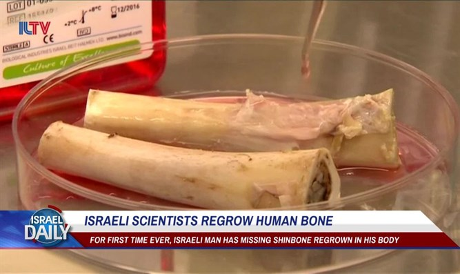 Israeli scientists regrow human bone